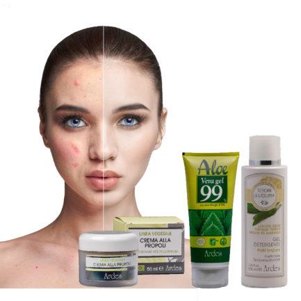 Soin visage naturel contre l'acné, peau grasse et mixte